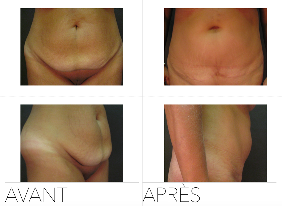 abdo01 - Abdominoplasty