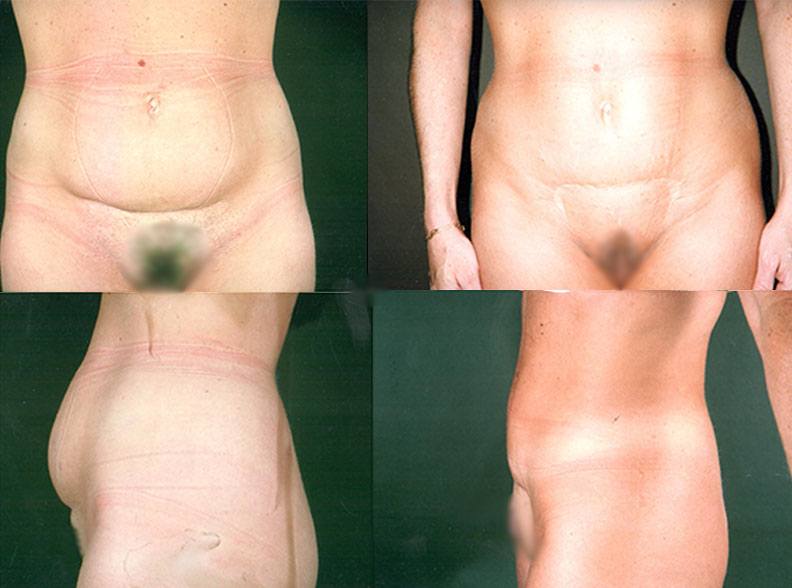 abdo1 - Abdominoplasty