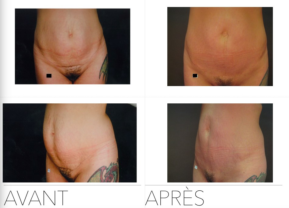 abdo11 - Abdominoplasty
