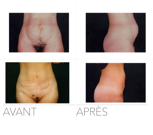 abdo4 - Abdominoplasty