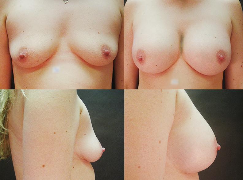 am3 - Augmentation mammaire