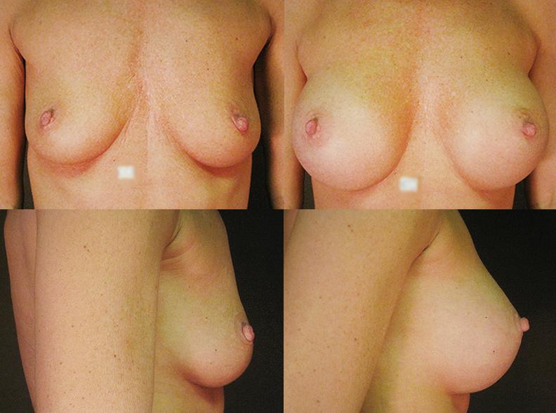 am4 - Breast augmentation