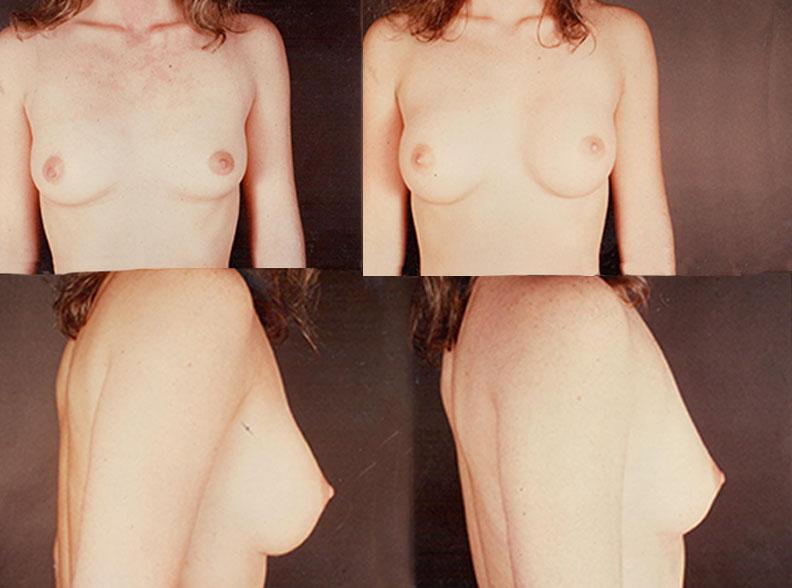 am6 - Augmentation mammaire