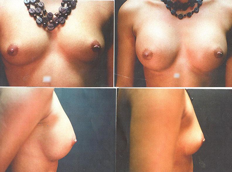 am7 - Augmentation mammaire