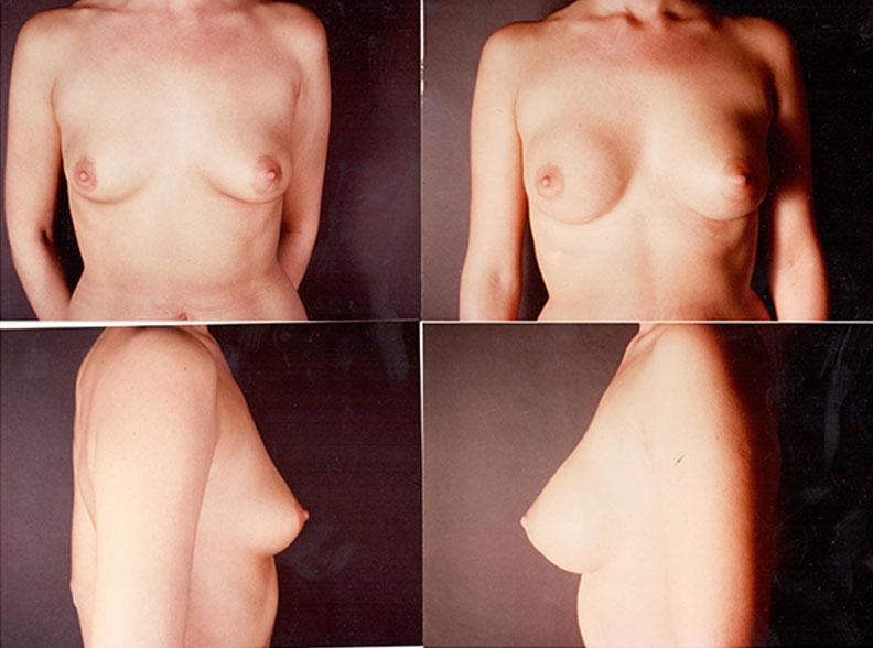 am9 - Augmentation mammaire