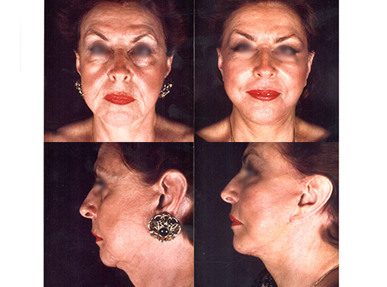 face4 - Le facelift