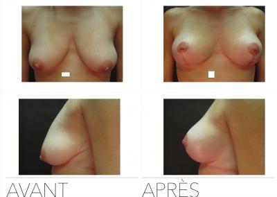lift03 400x284 - Redrapage mammaire
