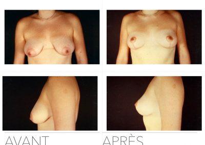 lift1 400x284 - Redrapage mammaire