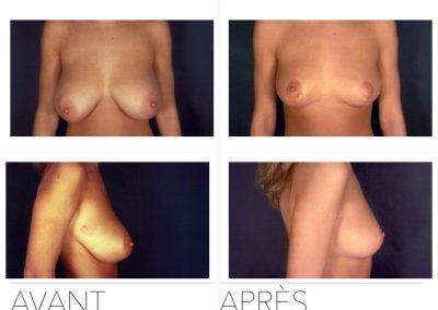 liftmam 400x284 - Redrapage mammaire