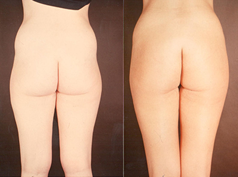 liposuccion - Liposuction