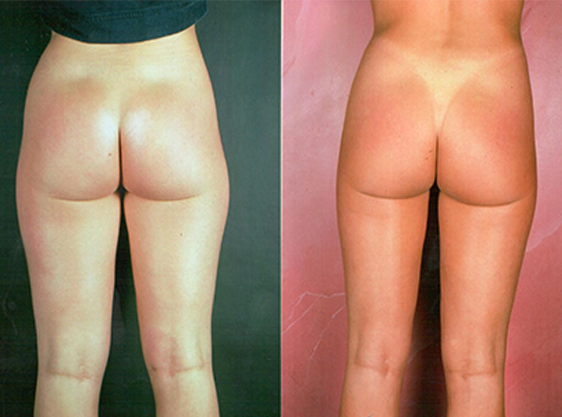 liposuccion2 - Liposuction