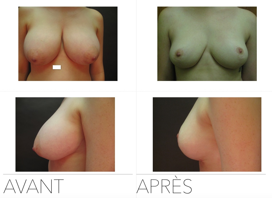 red - Breast Reduction