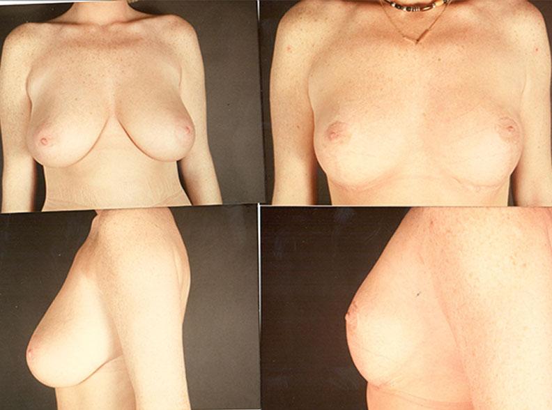 rm2 1 - Réduction mammaire