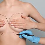 dr richard moufarrege redrapage mammaire - Clinique de chirurgie esthétique Montréal Dr. Richard Moufarrège