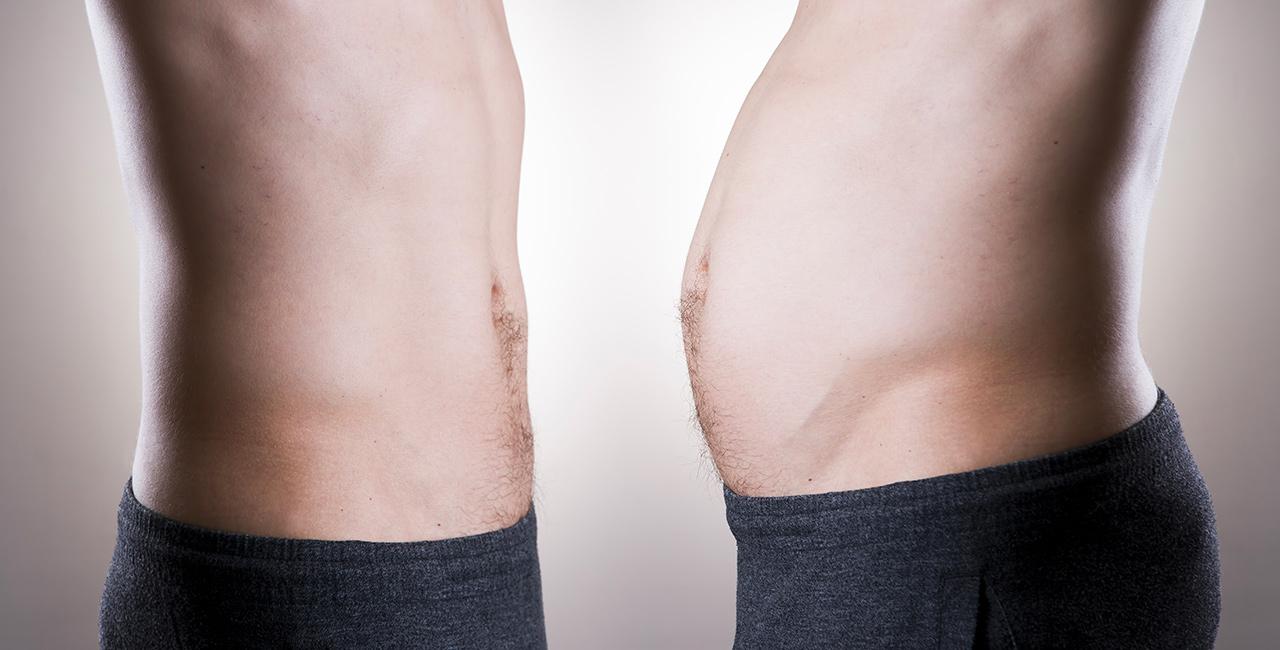 dr moufarrege liposuccion - Remodelez votre silhouette grâce à la  liposuccion