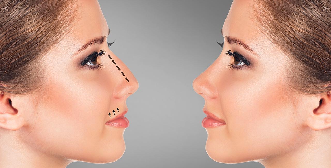 dr moufarrege rhinoplastie - Donnez la forme parfaite à votre nez grâce à la rhinoplastie
