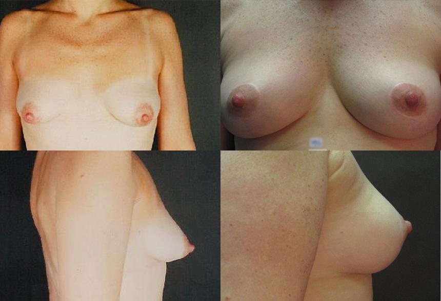 10 4 1 - Breast Lifting