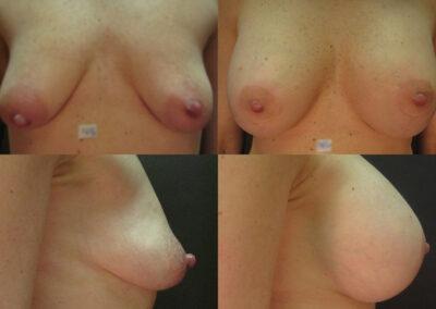 21 4 400x284 - Augmentation mammaire à apparence naturelle
