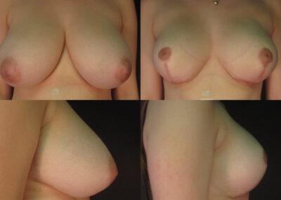 31 4 400x284 - Réduction mammaire