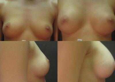 32 4 400x284 - Augmentation mammaire à apparence naturelle