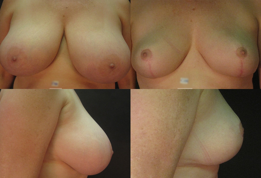 35 4 1 - Breast Reduction