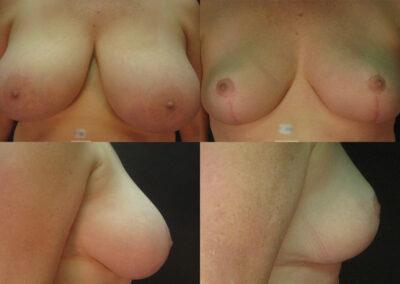 35 4 400x284 - Réduction mammaire