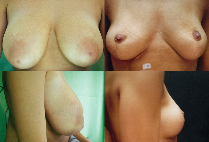 36 4 1 - Breast Reduction