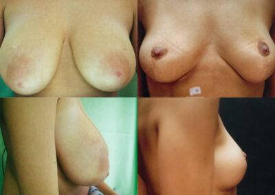 36 4 400x284 - Réduction mammaire