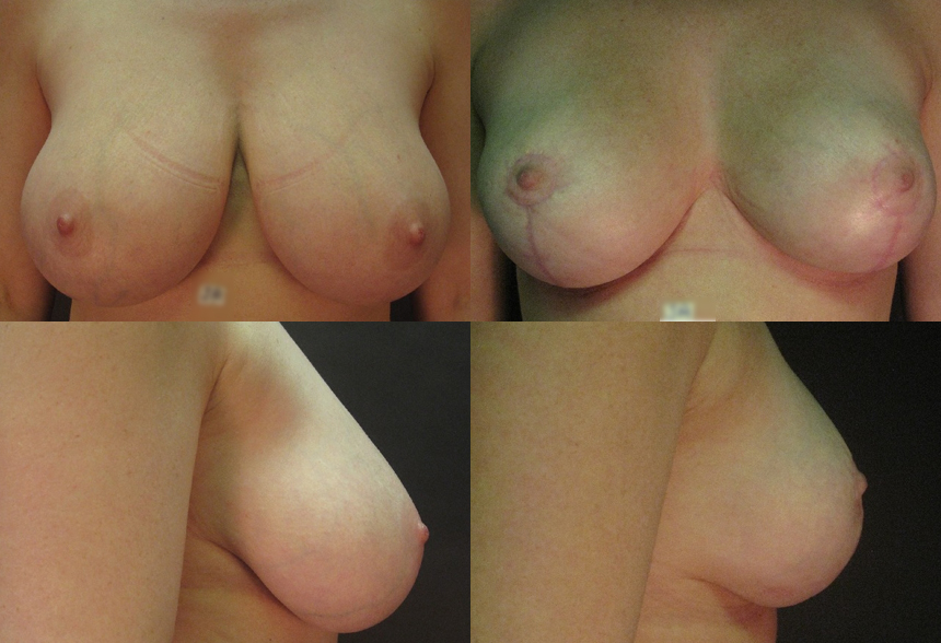 37 4 1 - Breast Reduction