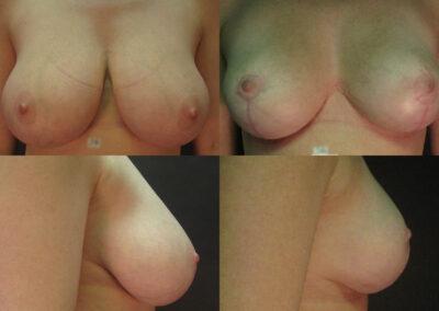 37 4 400x284 - Réduction mammaire