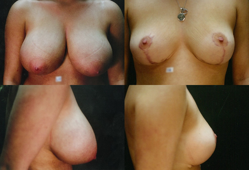 38 4 1 - Breast Reduction