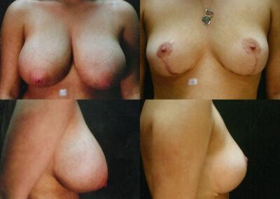 38 4 400x284 - Réduction mammaire