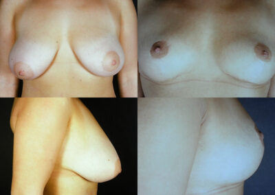 39 4 400x284 - Réduction mammaire