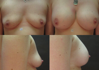 40 4 400x284 - Augmentation mammaire à apparence naturelle