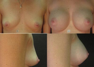 41 4 400x284 - Augmentation mammaire à apparence naturelle