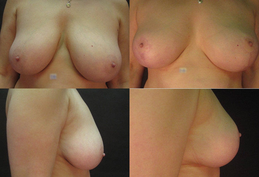 43 4 1 - Breast Reduction