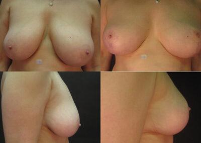 43 4 400x284 - Réduction mammaire