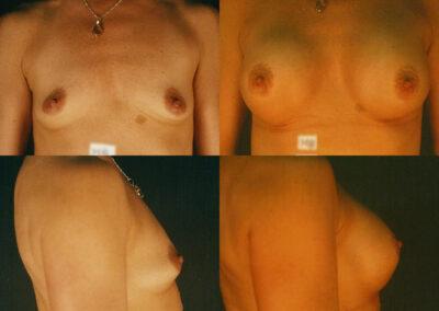 45 4 400x284 - Augmentation mammaire à apparence naturelle