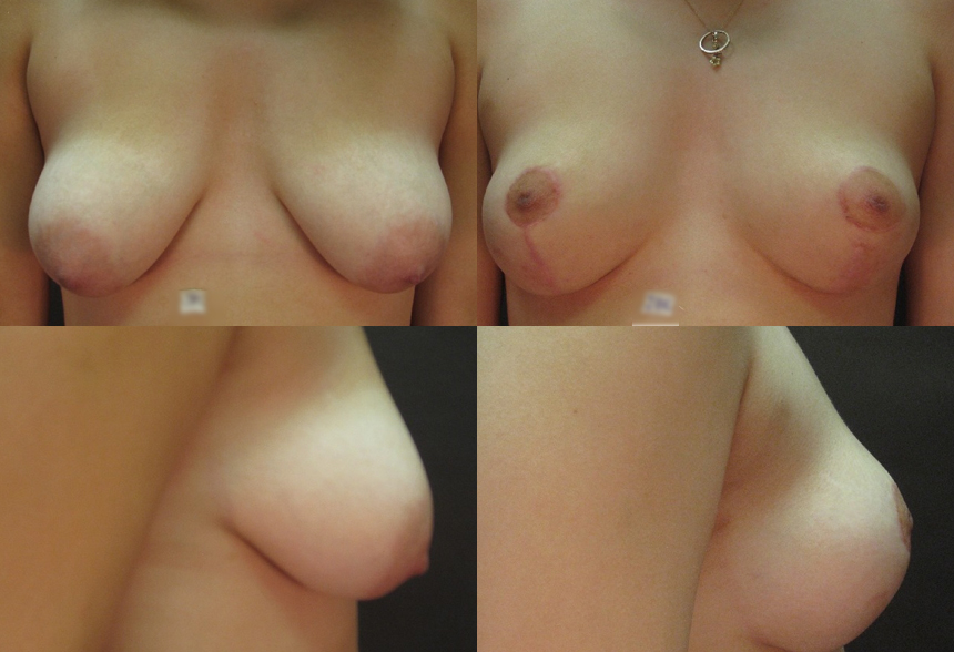 46 4 3 - Breast Reduction