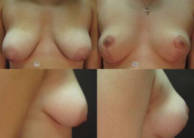 46 4 400x284 - Réduction mammaire