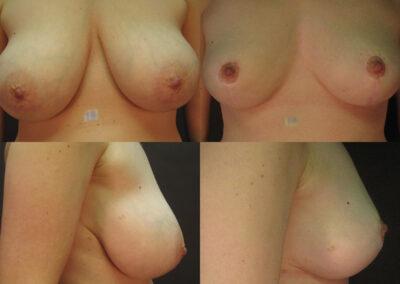 50 4 400x284 - Réduction mammaire