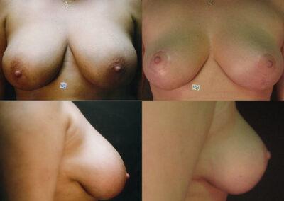 51 4 400x284 - Réduction mammaire