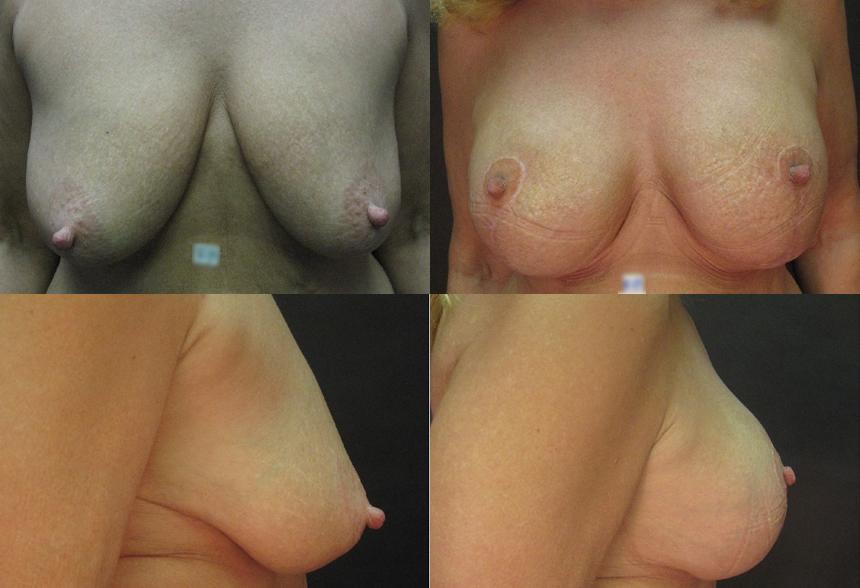 52 4 1 - Breast Lifting
