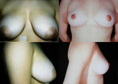 57 4 400x284 - Réduction mammaire