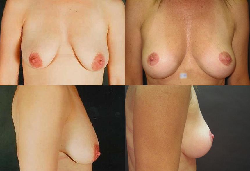 58 4 1 - Breast Lifting