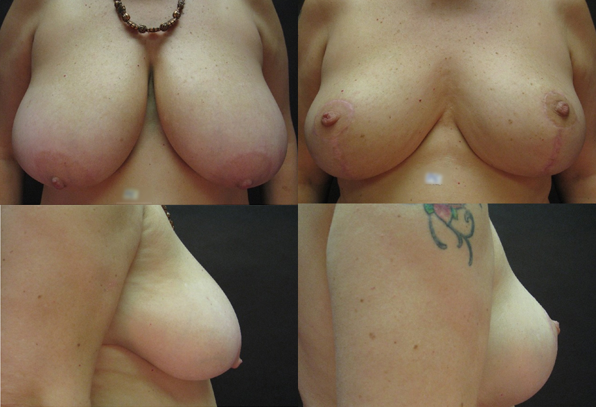 59 4 1 - Breast Reduction