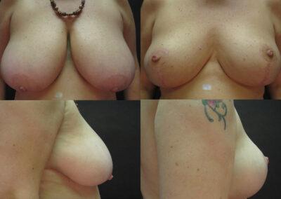 59 4 400x284 - Réduction mammaire