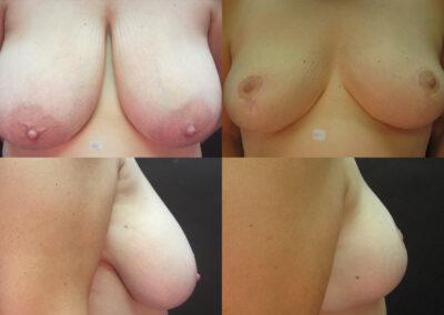 60 4 400x284 - Réduction mammaire