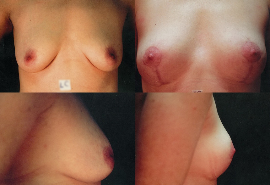 62 4 1 - Breast Lifting