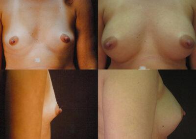 64 4 400x284 - Augmentation mammaire à apparence naturelle